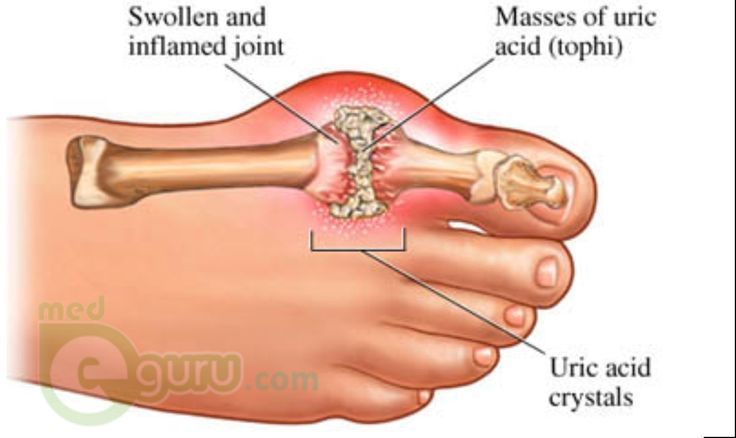 An overview by patient portal medeguru on what is gout. Information about the ca