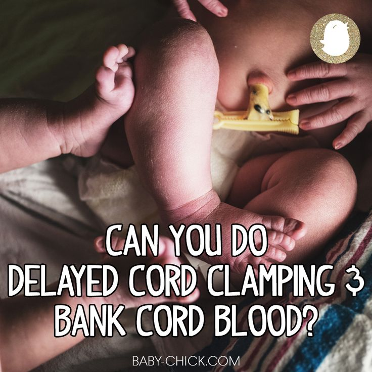 If you're wondering if you can do delayed cord clamping or cord blood banking or which to choose, we have the answer for you.