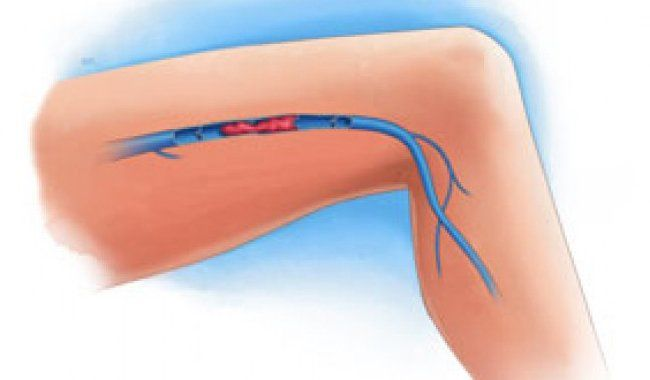 La pierna sintomas de trombosis venosa en profunda