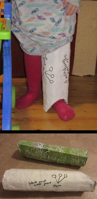 Spiel Gipsbein für Kinder