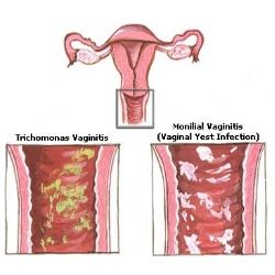 TOP 5 HERBAL REMEDIES TO TREAT YEAST INFECTION IN WOMEN