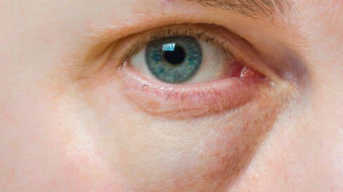 Kruhy pod očami vás varujú, na čo si treba dať radšej pozor?