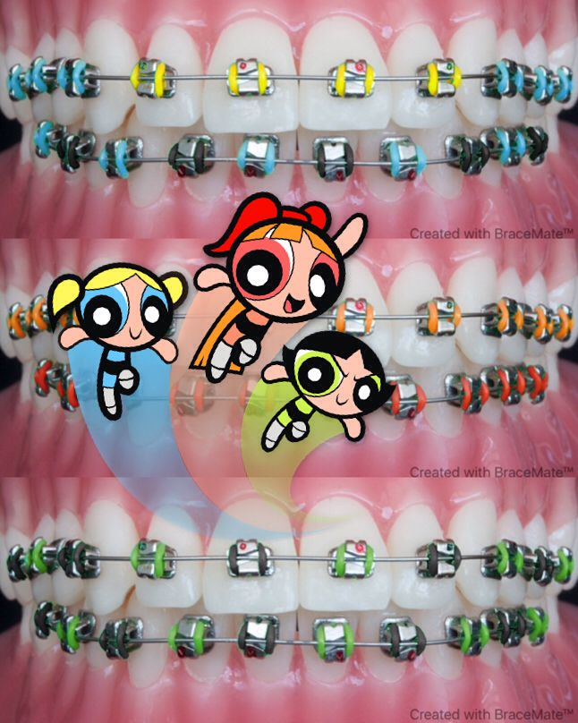Who is your favourite powerpuff girl? #powerpuffgirls #Bubbles #Buttercup #Buttercup #braces #orthodontist #orthodontics #brackets #ortodoncia #ortodoncista #ortodontia #ortodontista #kieferorthopäden #kieferorthopäde #braceson #aparelho #aparelhoortodontico #bracesjourney #bracesproblems #freeapp #android #ipad #iphone #ортодонт #ортодонтия #ortodonti #frenos #frenillos #orthodontie #colours #colors #colour #color #cosplay