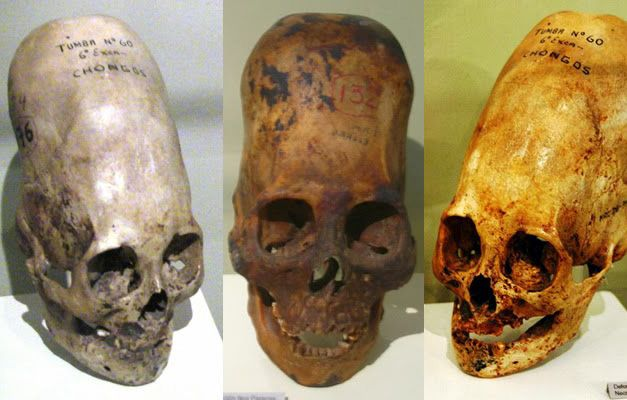 DNA Analysis Of Paracas Elongated Skulls Released. The Results Prove They Were Not Human