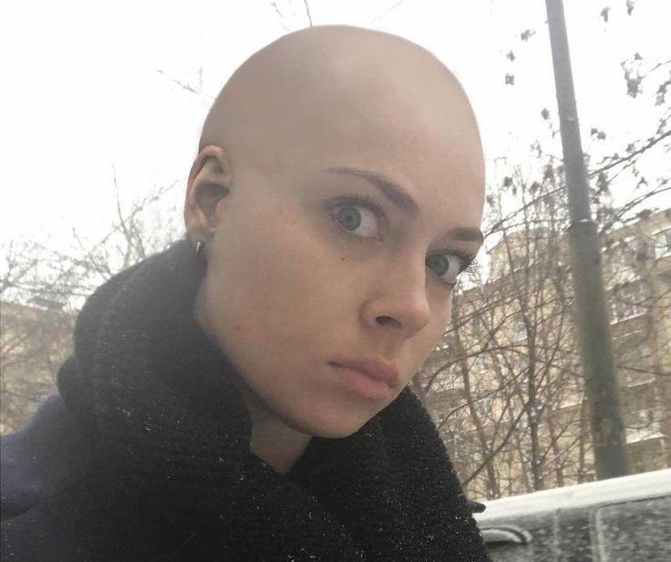 Фанаты заподозрили у побрившейся налысо Самбурской рак и шизофрению