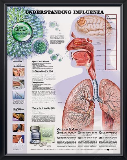 Understanding Influenza anatomy poster shows how the flu virus spreads and areas of the body that are affected. Pulmonology for doctors and nurses.