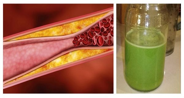 Reduce Bad Cholesterol and Unclog Your Arteries with 100ml of THIS a Day
