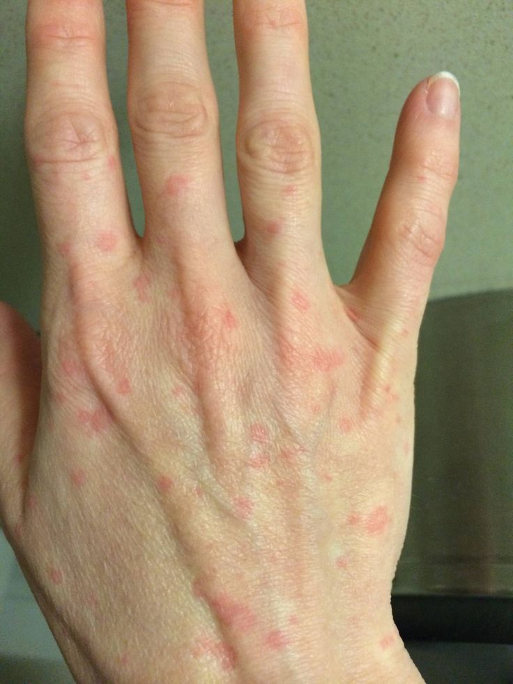 Chronic Urticaria causes, symptoms and treatment: Living with Urticaria.