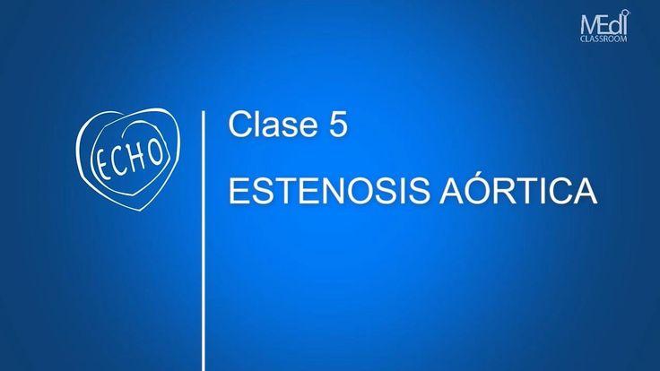 CLASE 5 - Estenosis Aórtica