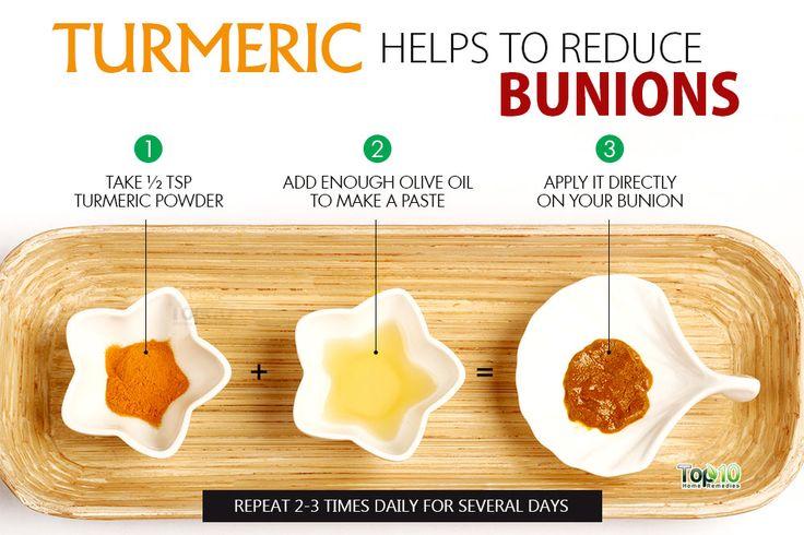 use turmeric to heal bunions