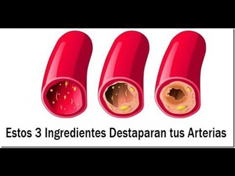 Limpia Tus Arterias Coronarias Con Sólo 3 Ingredientes - YouTube