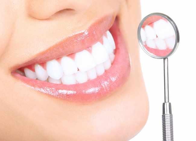Blanchiment des dents après l'alignement grâce a l'appareil dentaire