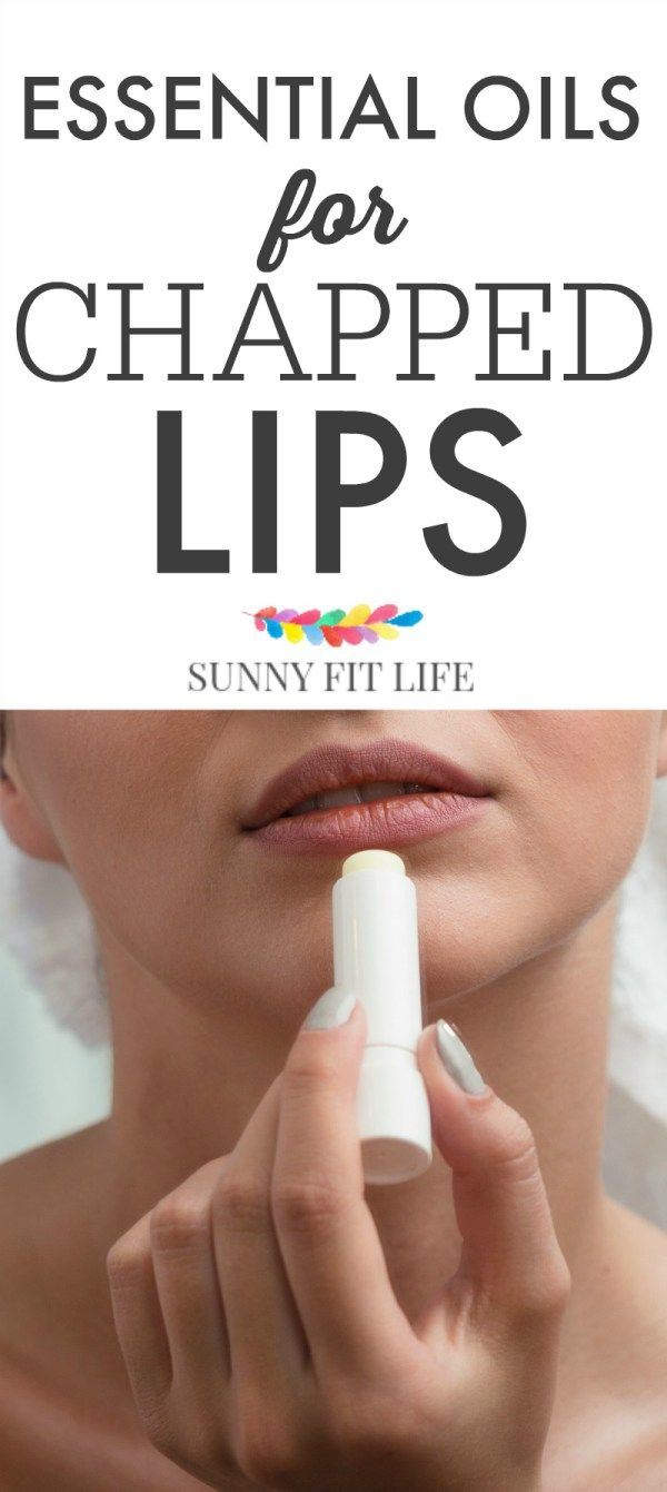 Essential Oils for Chapped Lips - Dry Lips, Be Gone!