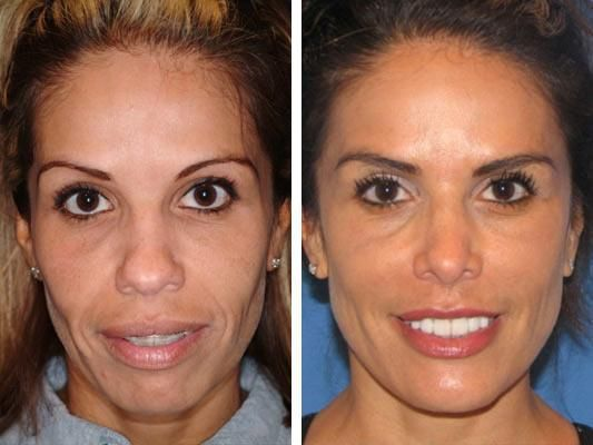 Celebrity Facial Implants Before And After - http://plasticsurger.com/celebrity-facial-implants-before-and-after/
