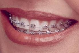 Orthodontic treatment straightens your teeth so they look and work better. Braces or other appliances are used to put gentle pressure on your teeth. Over a number of months or years this pressure can move your teeth into the right position.  Choosing a dentist and taking care of your oral health is a personal decision. You want a dentist you can talk to, learn from and feel good about visiting.