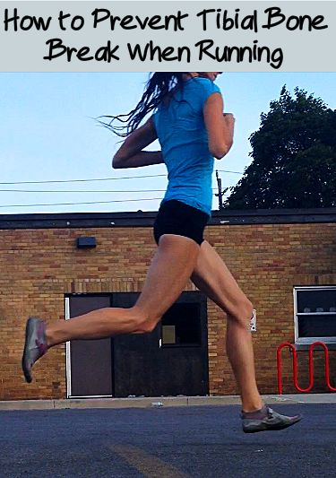 How Runners Can Easily Deal with a Tibial Stress Fracture