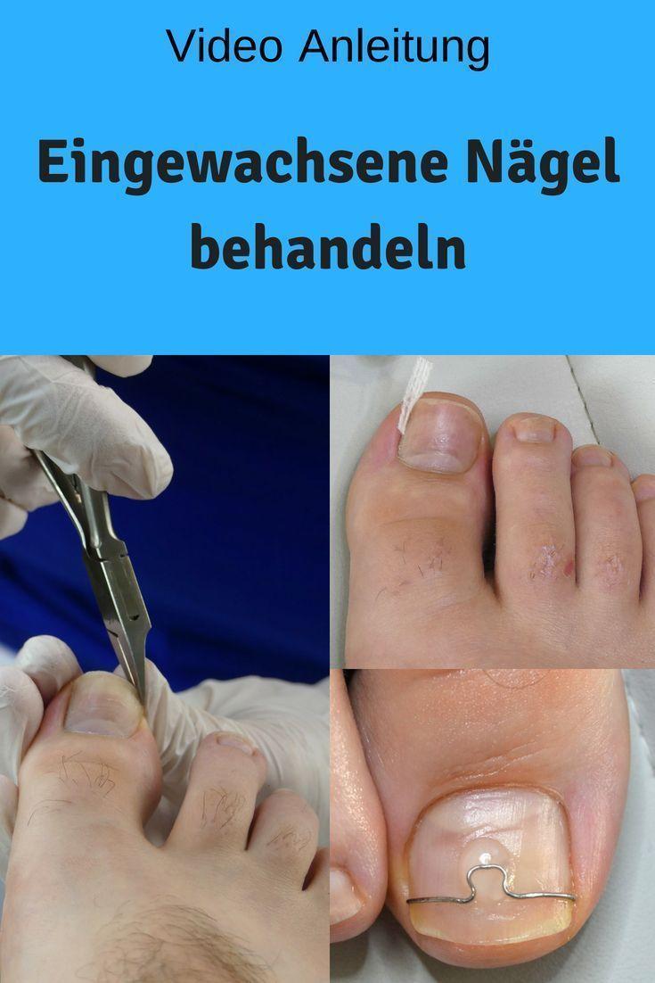 Treat ingrown nails. – Nail fungus home remedies – #treat #Ingrowths … – #deal…
