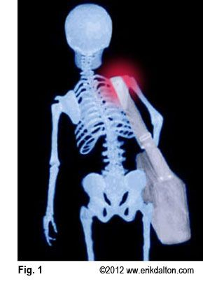 A picture says a thousand words... heavy handbags, laptops and school bags can lead to musculoskeletal injuries.