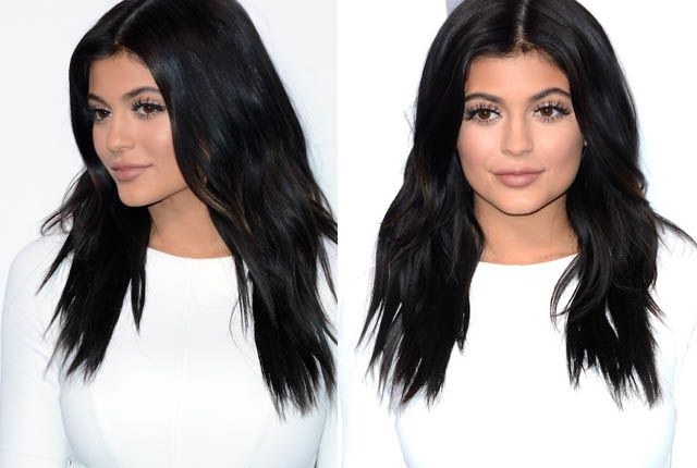 SB Exclusive: 'Botched' Doctors 'Not Into' Kylie Jenner's Lip Injections