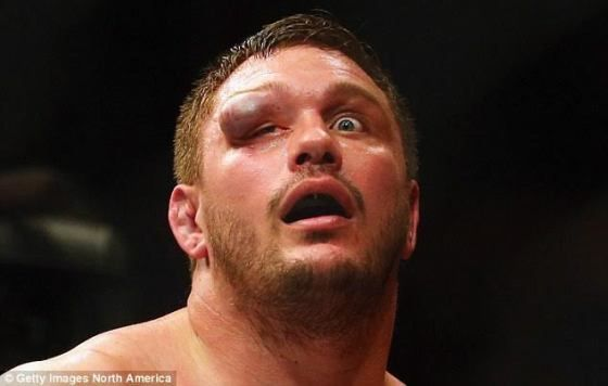See the eye injury a UFC fighter suffered after fight (photos)   Hey over there..can you see me? I'm right here! Lol. UFC fighter Matt Mitrione 37 got quite an eyeful as he fell to Travis Browne. Mitrione was left with a horribly swollen eye after the match with Browne. Browne insists the eye incident was wholly accidental and without malicious intent. More pics.......  sports