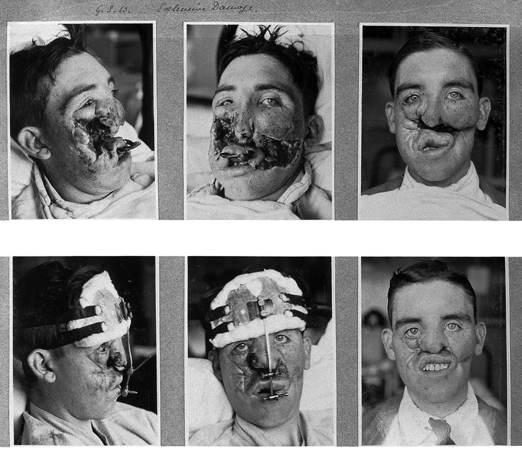 World War 1 Plastic Surgery Check out what I found on the internet