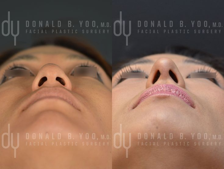 Beverly Hills Rhinoplasty Specialist Dr. Donald Yoo performed a primary Asian rhinoplasty and upper blepharoplasty. This before and after picture was taken at 2 month post surgery.