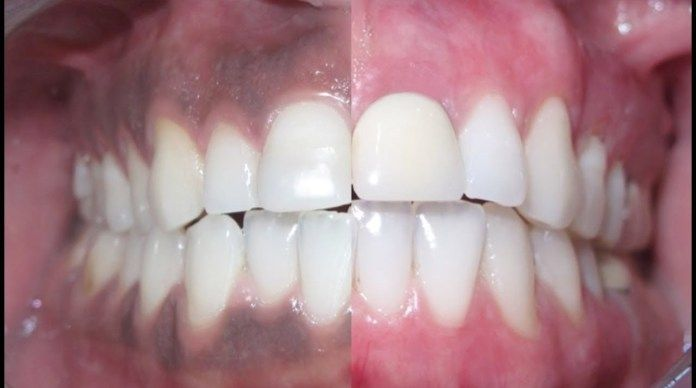 Black Gums Natural Healty Tips To Get Rid Of Them Natural Healthy Tips Black Gums Gum Care Swollen Gum