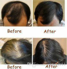 Conseils pour repousser les cheveux et lutter contre les pièges naturels …   – Hair Loss Stoppers