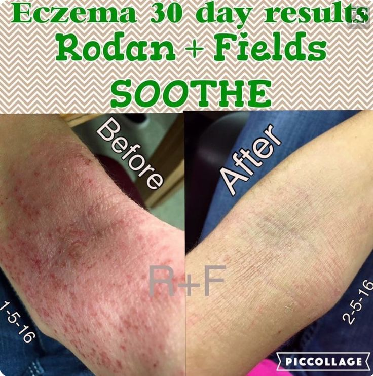 Results are amazing. Are you or someone you know suffering with Eczema? Rodan + Fields Soothe products are the solution. Check out my website: rcline.myrandf.com  Or you can email me at my personal email address: rccsales1@gmail.com  #rodanandfields