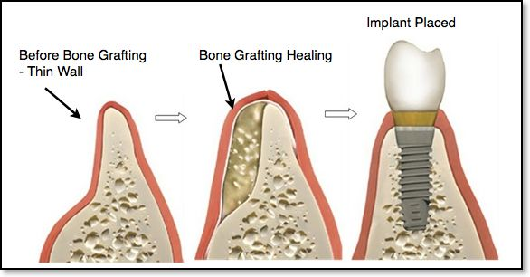 When do I need bone grafting for a dental implant?  @ http://www.charlburydental.co.uk/