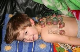 Cupping Is Even Safe For Children It Causes Mild Bruising