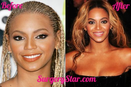 Check out Beyonce's nose job! #Beyonce