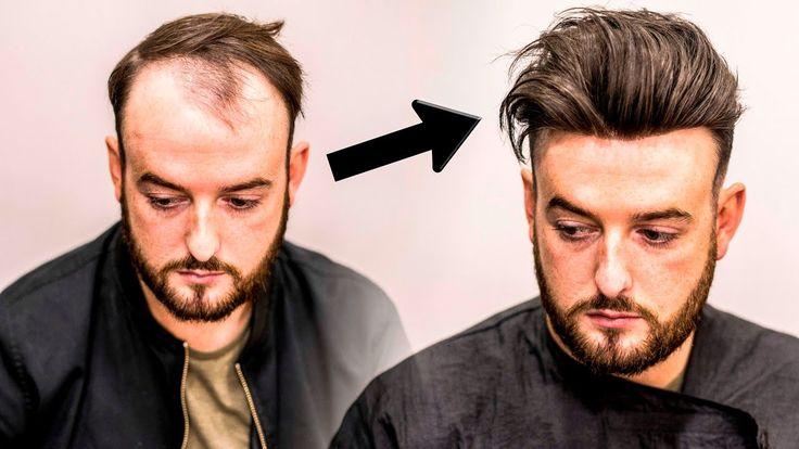 Mens Hair Loss Treatment | Hairstyle Transformation - Does it  Work?НАРАЩИВАНИЕ ВОЛОС для мужчин
