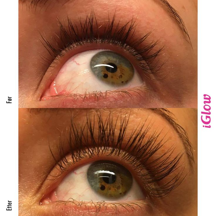 iGlo Long Lashes Serum - iGlow.no