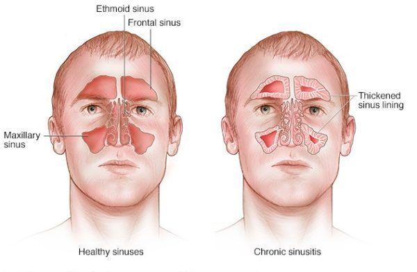 sinusitis and sinus problem