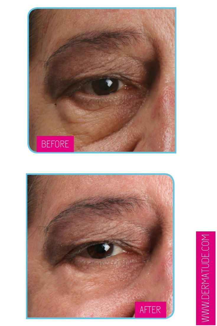 #Dermatude Before and After Eyes