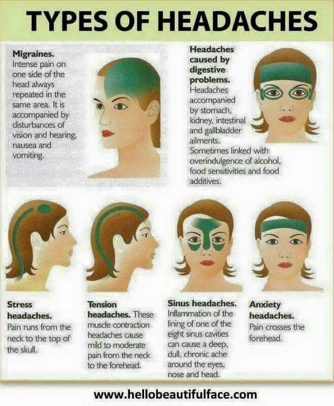 What Are The Different Types Of Headaches And Symptoms Manual Guide