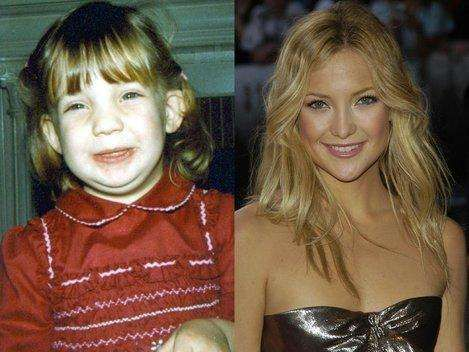 35 Famous People Who Were Ugly Kids