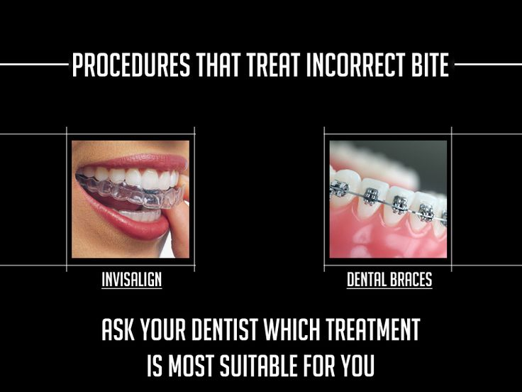 Invisalign and dental braces are the 2 best treatments to correct the misaligned teeth. So ask your dentist which treatment is most suitable for you?