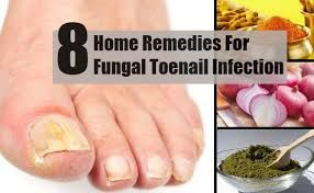 I wish I had known about this years ago  toe fungus causes