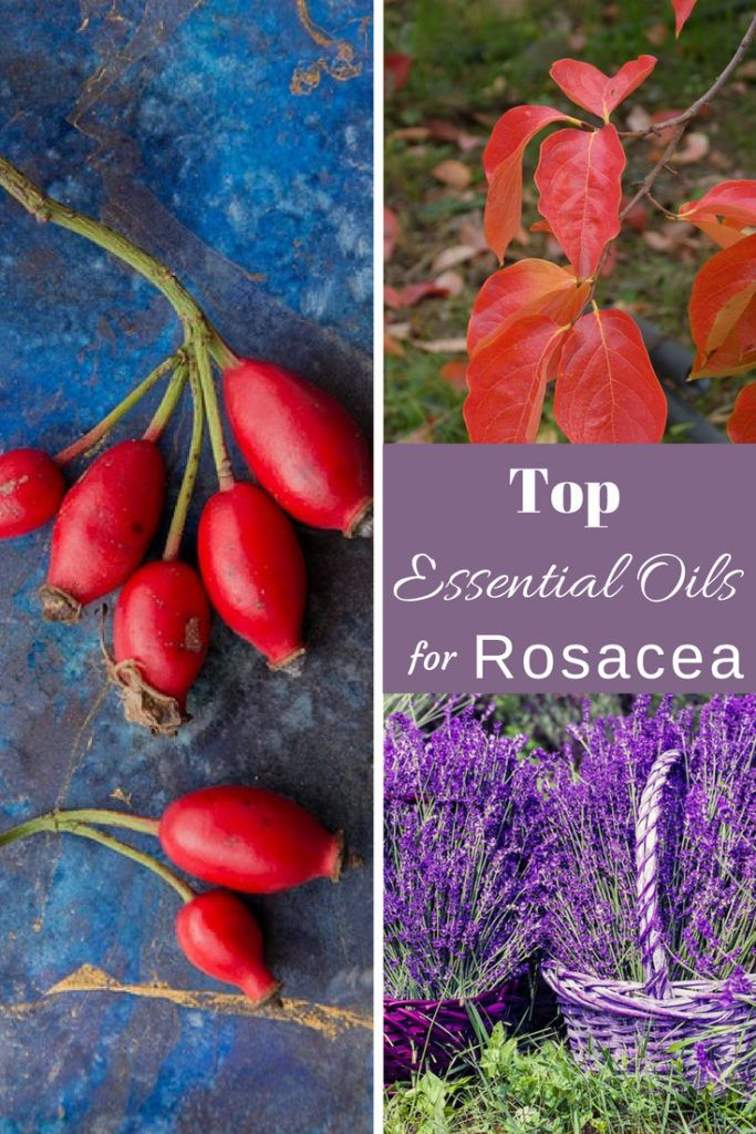 Top Essential Oils for Rosacea Symptoms