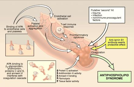 Antiphospholipid syndrome: an overview