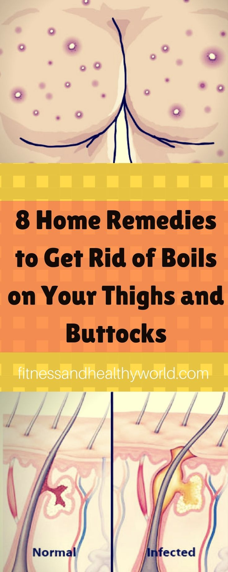 #remedy#boils#thighs#buttocks#beauty#skincare