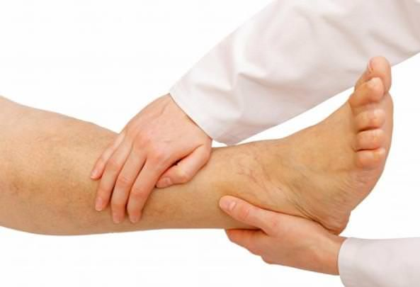 How To Get Rid Of Fluid Retention In Legs Naturally