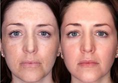 How to use home remedies for melasma treatment and cure? In the event that those dark patches are stealing without end the excellence of your face? Th...