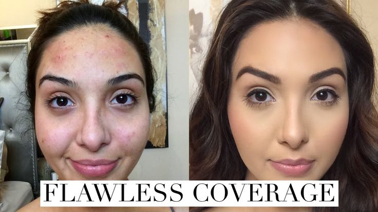 EASY: How to Cover Acne Breakouts and Dark Spots with Makeup