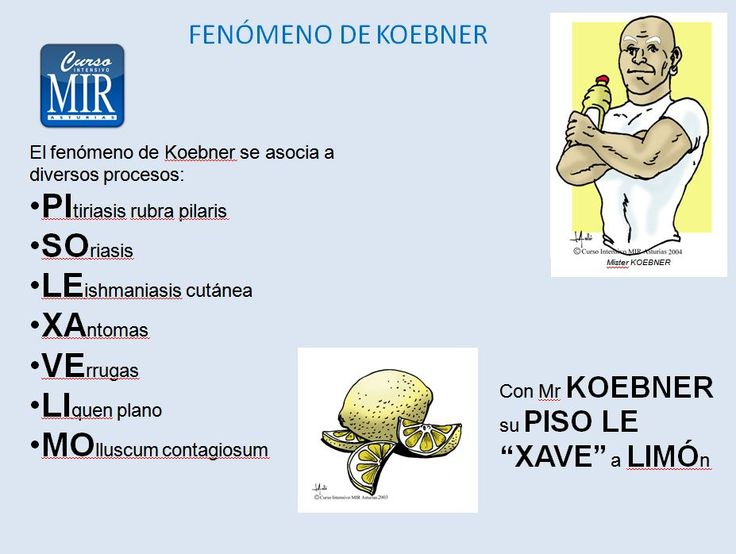 Regla Nemotécnica del Fenómeno de Koebner