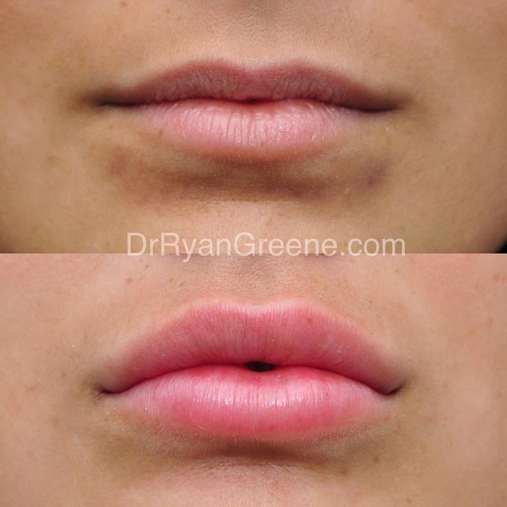 This very nice patient came to me desiring fuller lips with ‪#‎Juvederm‬. …