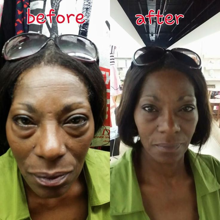 Another satisfied Instantly Ageless customer! https://gotdreams.jeunesseglobal.com/en-US/instantly-ageless/ #Jeunesse #InstantlyAgeless #Luminesce #CellularRejuvenationSerum #Free #Samples