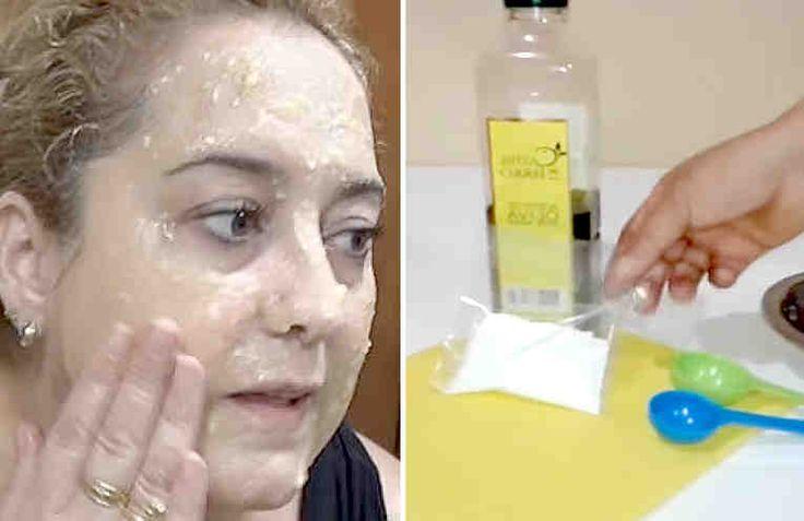 La microdermoabrasión es un tratamiento muy parecido a un peeling pero menos agresivo para la piel, y, lo que hace es renovar el cutis, eliminar cicatrices, disminuir manchas, cerrar los poros y eliminar las células muertas que hacen que la piel se vea sin vida y cansada. Aunque existen mucho